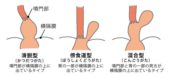 裂孔 ヘルニア 筋 トレ 食道