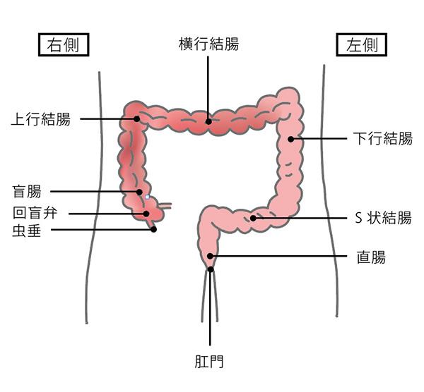 癌 s 状 結腸