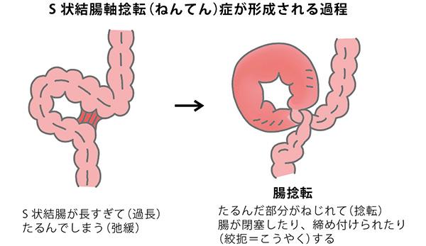 腸閉塞 原因