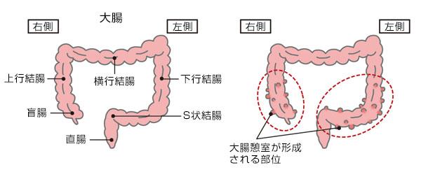 虚 血性 大腸 炎