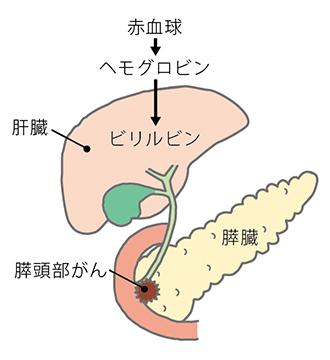 閉塞性黄疸